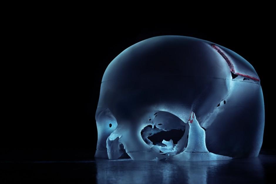 Kinderschädel in 3D mit Verletzung